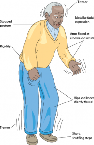 Symptoms of Parkinson's Disease.  Not every patient will have all these symptoms.